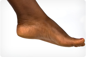 chicago il foot doctor for heel pain