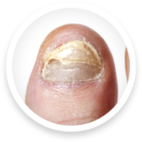 chicago foot doctor for toenail fungus treatment