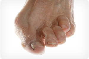 chicago il foot doctor for hammertoe and claw toe treatment