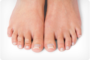 chicago il foot doctor for ingrown toenail treatment