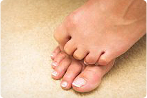 chicago il foot doctor for neuroma treatment