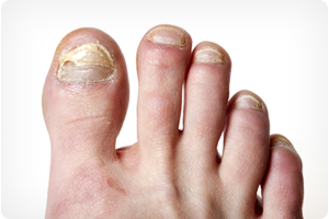 chicago il foot doctor for toenail fungus treatment