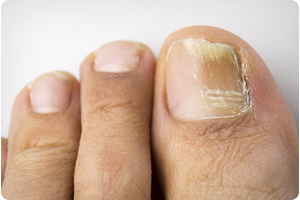 chicago podiatrist for toenail fungus treatment