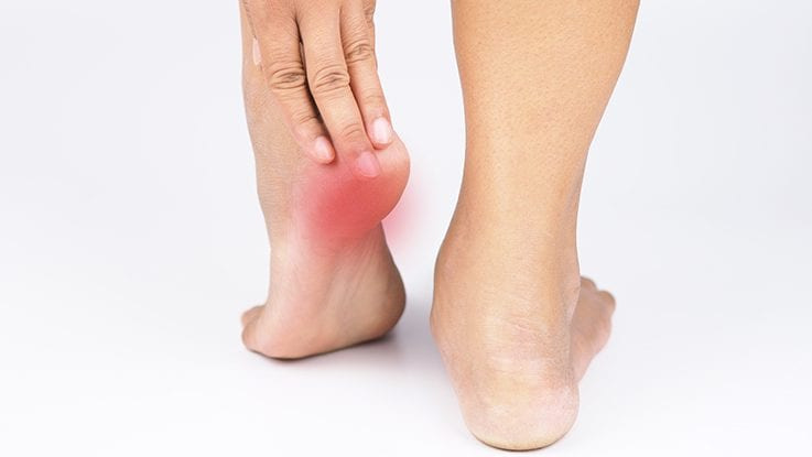 Plantar Fasciitis Treatment Weil Foot Ankle Institute